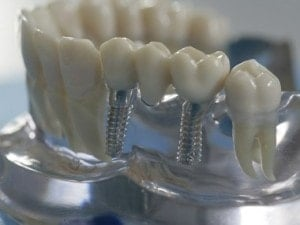Modell eines Kieferknochens mit Zahnimplantaten (BILD: PRODENTE E.V.)